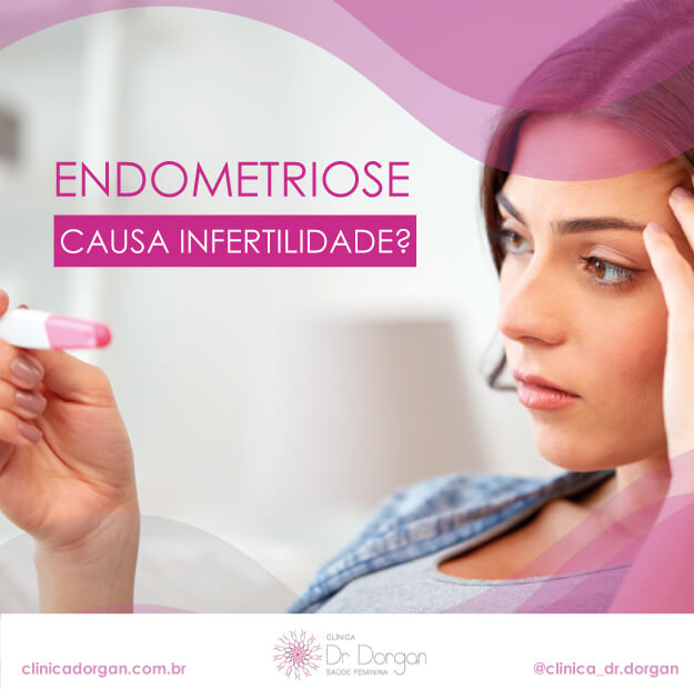 Endometriose causa Infertilidade? - Clínica Doutor Dorgan