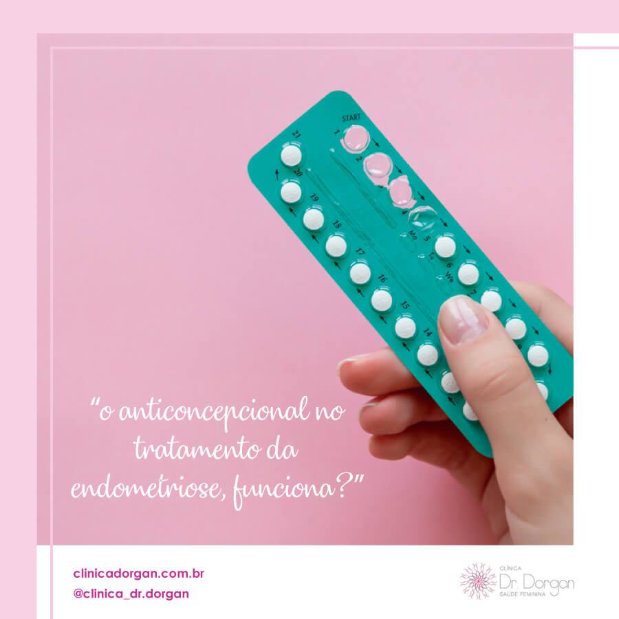 Anticoncepcional no tratamento da Endometriose - Clínica Doutor Dorgan